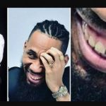 """Please, Whiten Your Teeth"" – Nigerian Dentist Advises Phyno, As He Shares Photos Of His Brown Teeth"